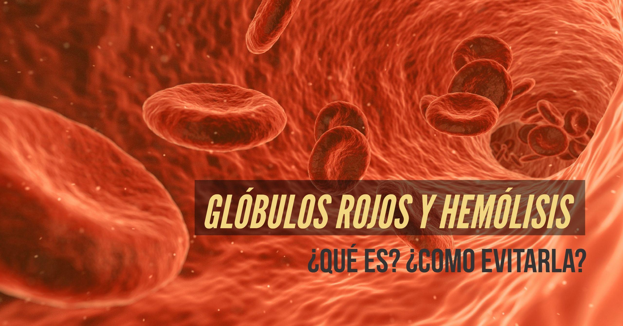 hemolisis y globulos rojos
