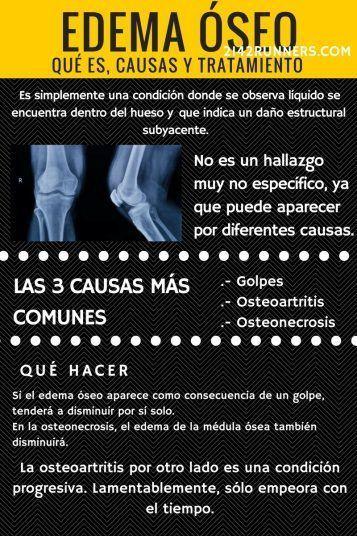 Edema óseo infografía