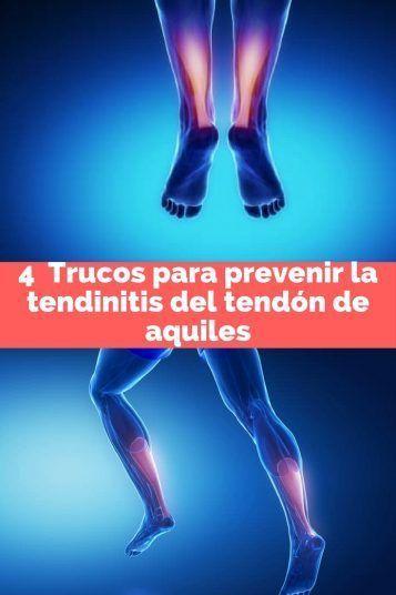 4 Trucos para prevenir la tendinitis del tendón de aquiles