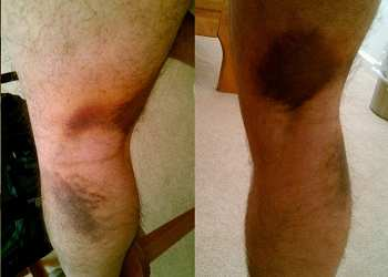 desgarro biceps femoral